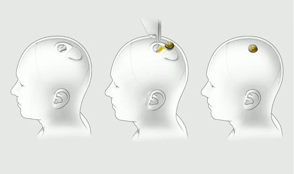 chip neuralink