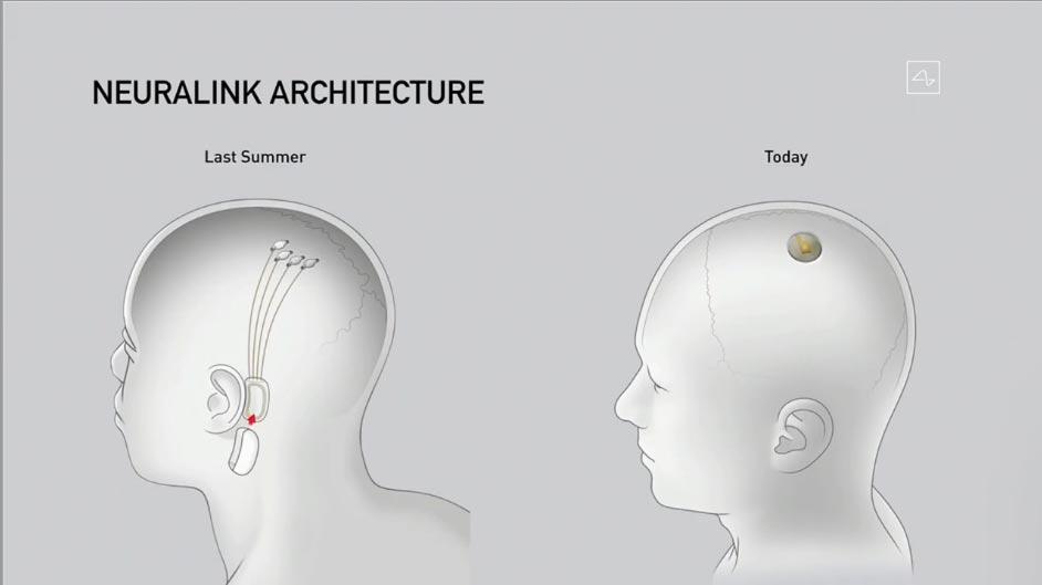 neuralink chip elon musk